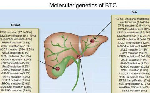 胆管癌靶向、免疫疗法最新进展小结