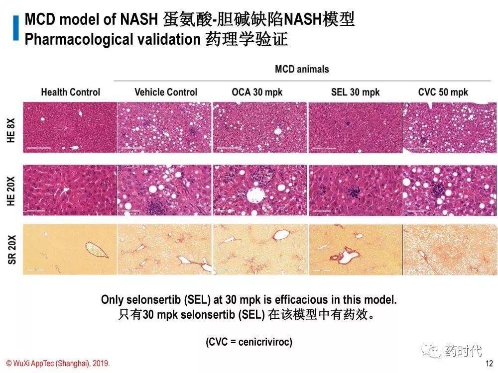 徐德鸣博士 | NASH动物模型的策略:现有模型都不足,但有用