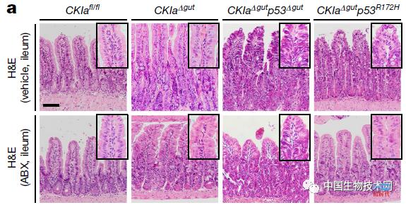 """肠道环境""""赐予""""p53基因的两面派作用:抗癌or促癌"""