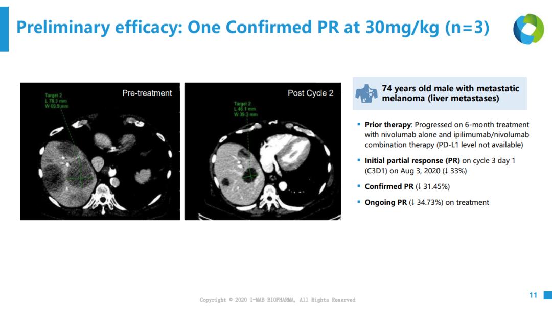 紫薯博士专栏 | 靶向巨噬细胞CD47的肿瘤药物研发进展