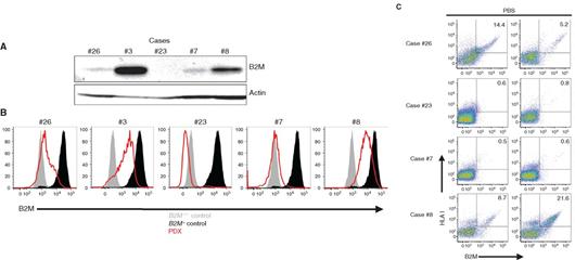 HLA-I分子加工和递呈抗原功能受损是免疫检查点抑制剂耐药的重要原因