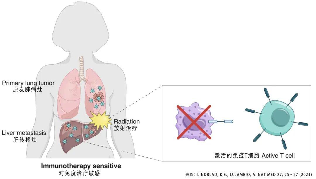 注意丨肿瘤肝转移之后,PD-1免疫治疗药物疗效下降