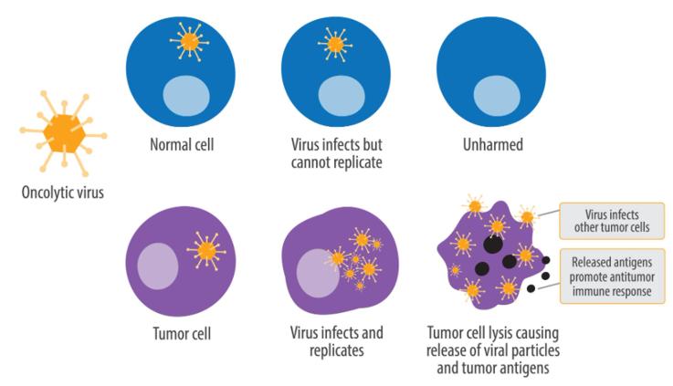 """免疫   感染新冠病毒后肿瘤消失?!快来了解下肿瘤领域的""""借毒杀癌""""理念"""