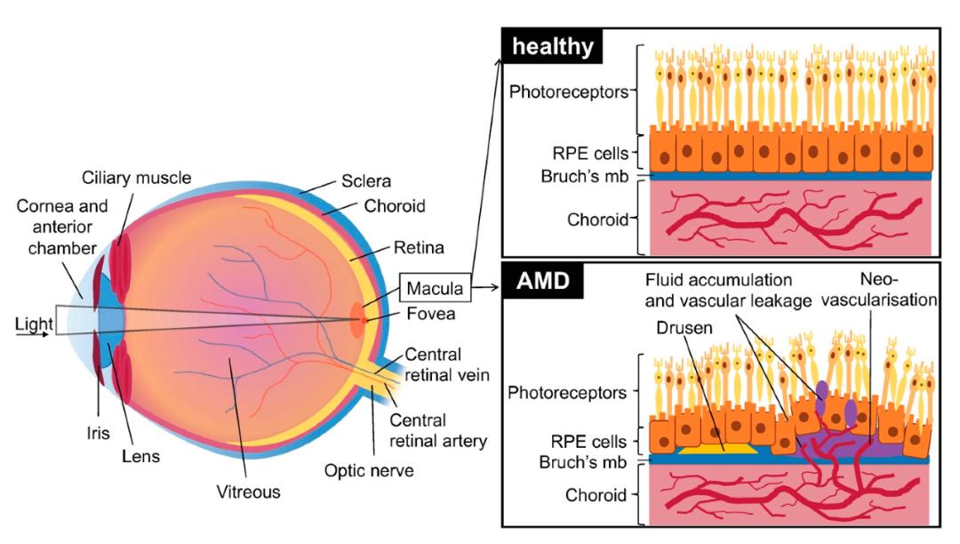首款针对眼睛设计的双抗药物Faricimab Ⅲ期临床效果良好,治疗时间长达16周