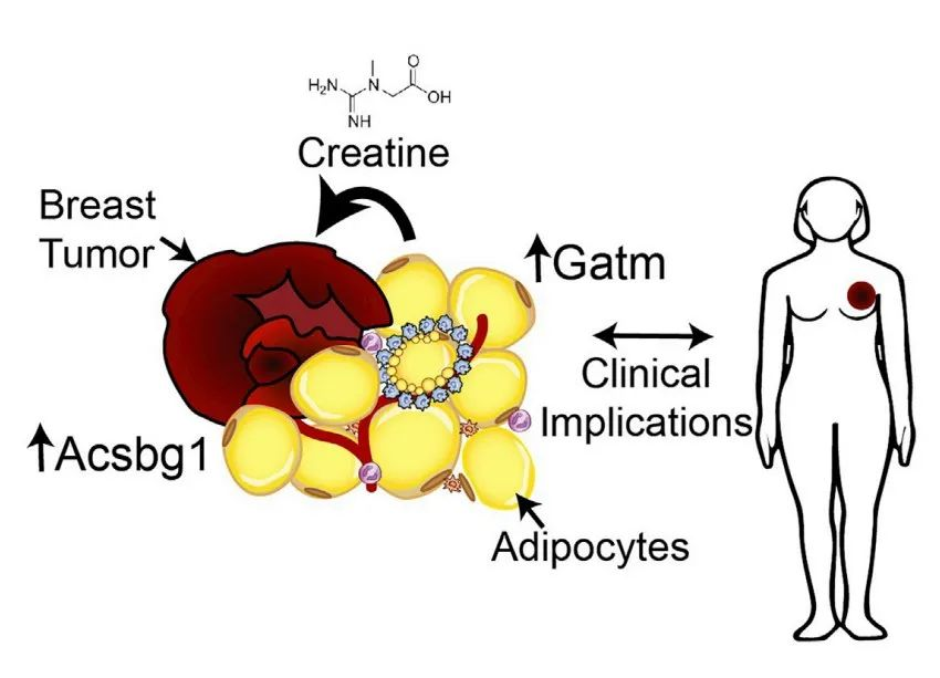 Cell Metabolism:肥胖导致乳腺癌详细机制被揭示