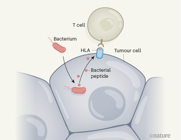 Nature:人类肿瘤组织中充满了细菌?不怕,正好用作癌症治疗靶点