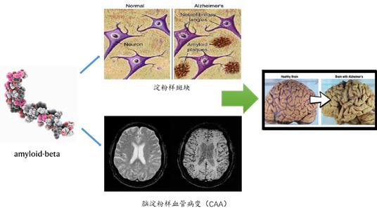 免疫疗法再立功!APOE抗体治疗阿尔茨海默症