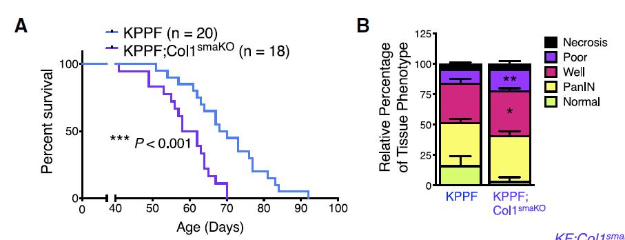 Cancer Cell:胶原蛋白的流失,不仅是容颜渐去,还会加快癌症发展
