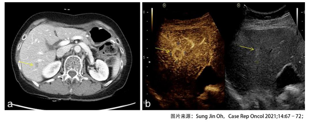 绝境逢生!晚期胃癌肝转移后怎样实现长期生存?