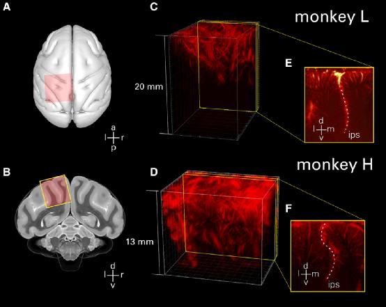 前首富陈天桥创立的脑机接口中心获突破!使用超声波读取大脑活动,为思维控制机器开辟新途径