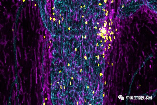 """大脑享有""""免役特权""""?Cell:免疫监视从未间断"""