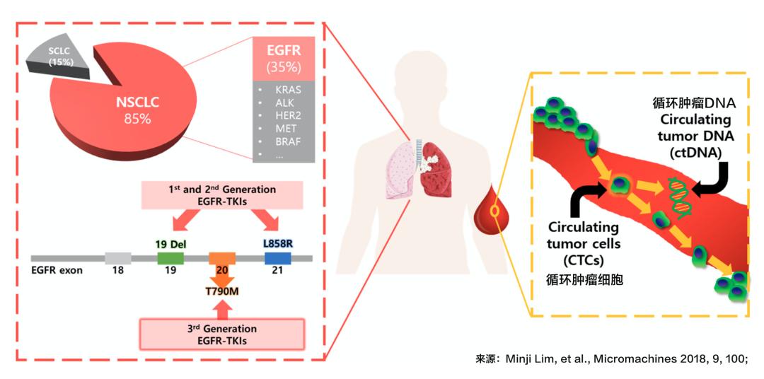 信否?肿瘤组织基因检测阴性,血液却检出可吃靶向药的基因