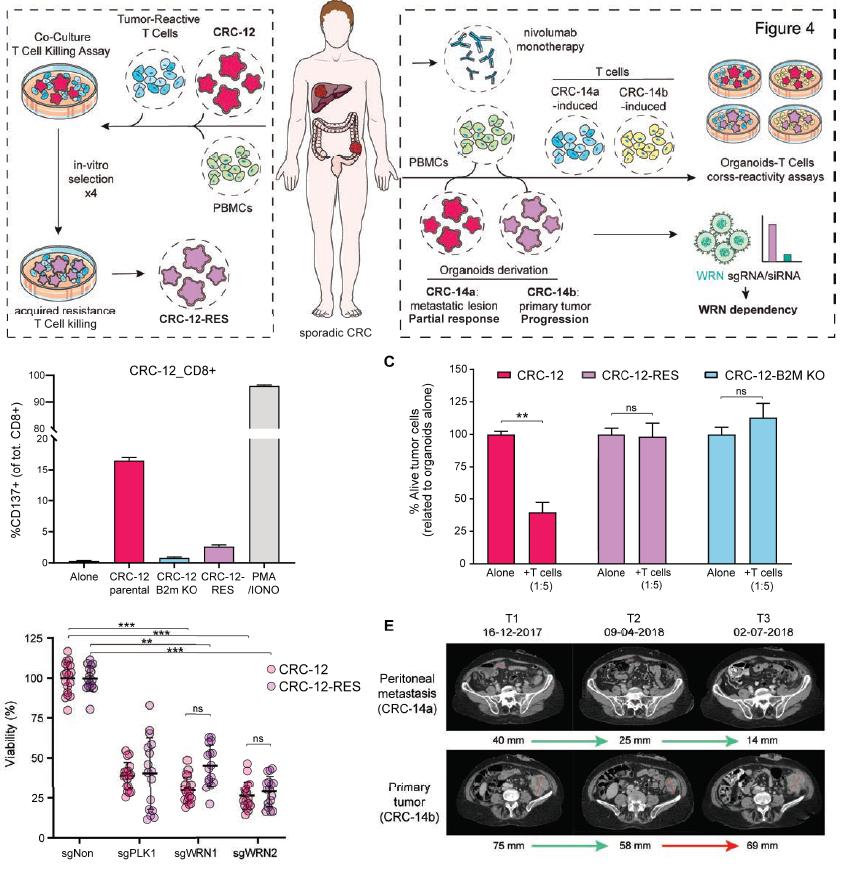 找到耐药性结直肠癌弱点:WRN基因有望成为耐药性结直肠癌治疗新靶点