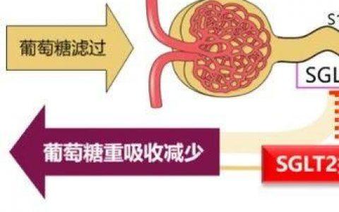 1、2型糖尿病均迎来新进展:支持批准、指南推荐、引进授权……