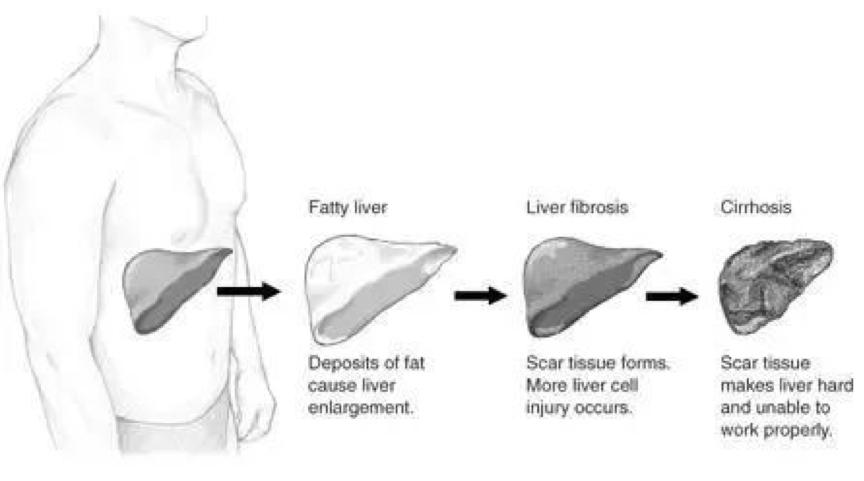 RNAi疗法中期结果积极,或破非酒精性脂肪性肝炎(NASH)无药之局