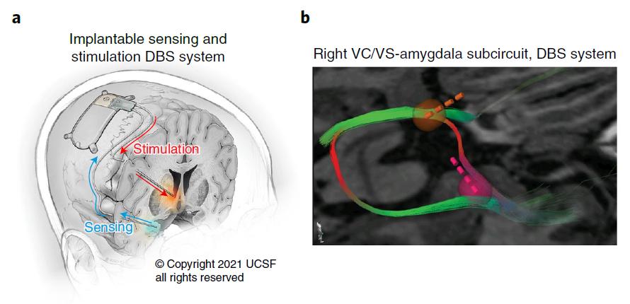 """世界首例!在大脑中植入""""起搏器"""",通过电刺激,成功治愈重度抑郁症"""